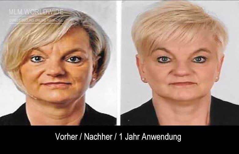 Sivana-Schmidt-vorher-nachher-Juchheim