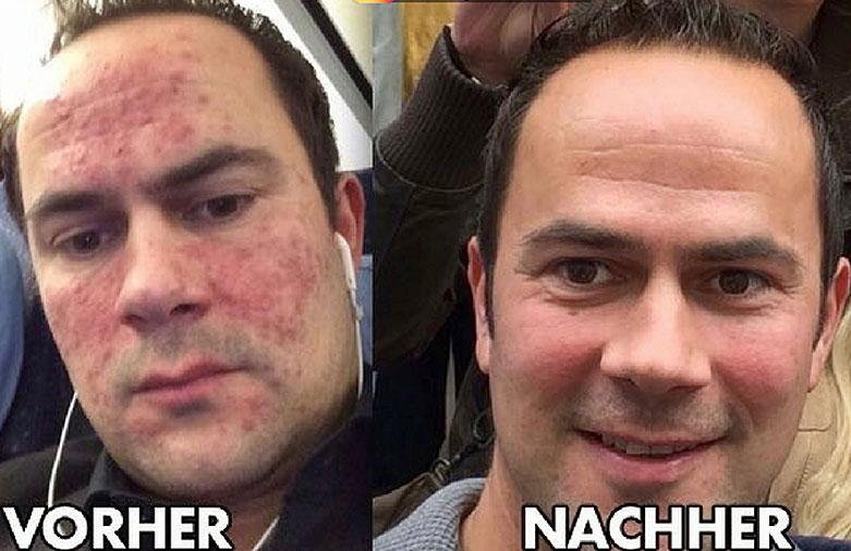 Tobias-Eggers-Vorher-Nachher